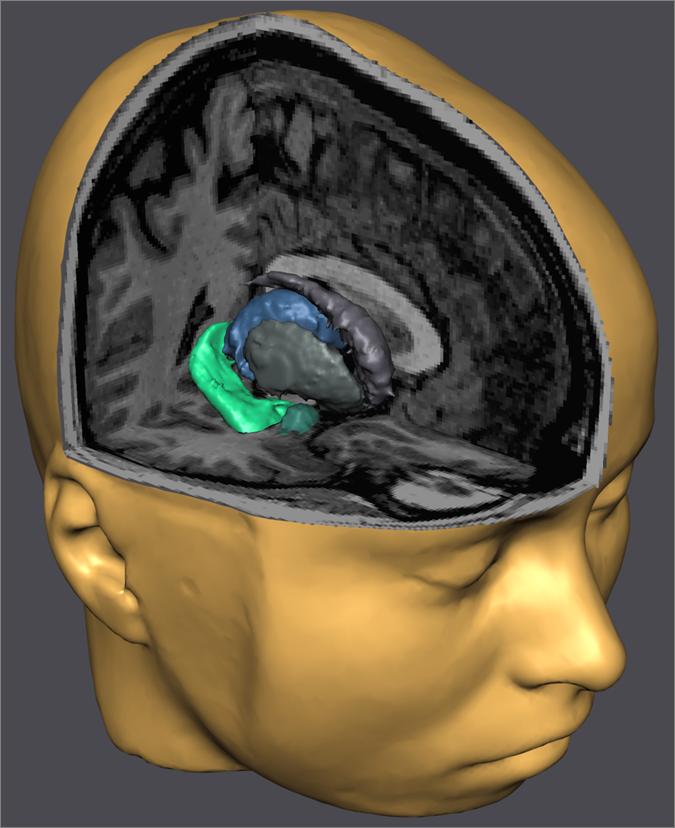 hippocampus-i